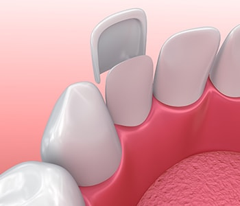 """Dr. Paul O'Malley Encino, CA patients ask, """"What are the benefits of ultra thin veneers?"""""""