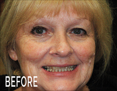 Gerri's Story on her anti aging Cosmetic Restoration Encino