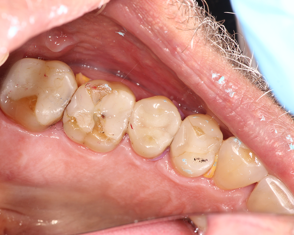 Holistic and Biomimetic Restorations in LA (No Crowns)