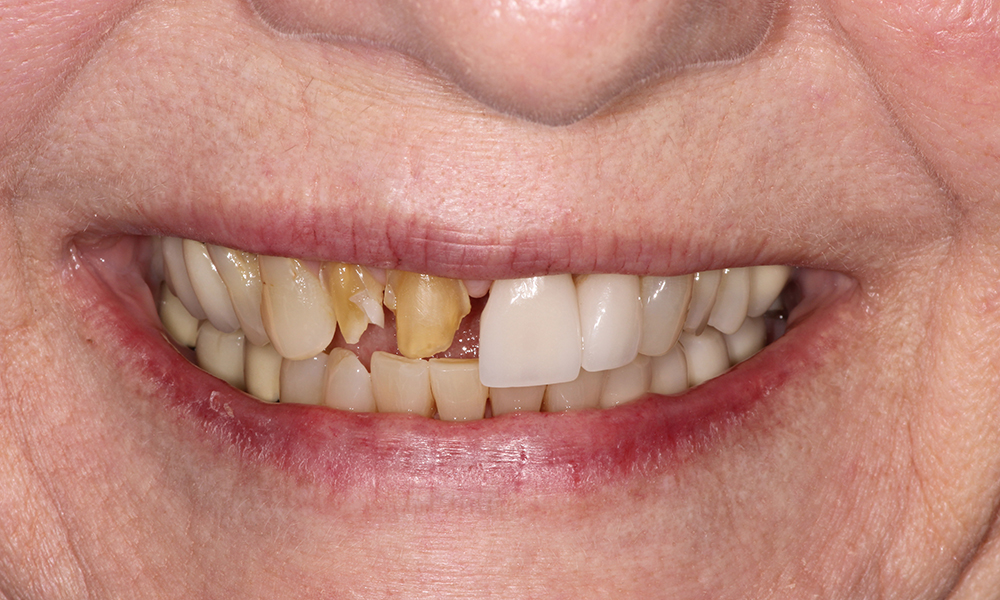 Full Mouth Reconstruction (Holistic) - LA - Implants