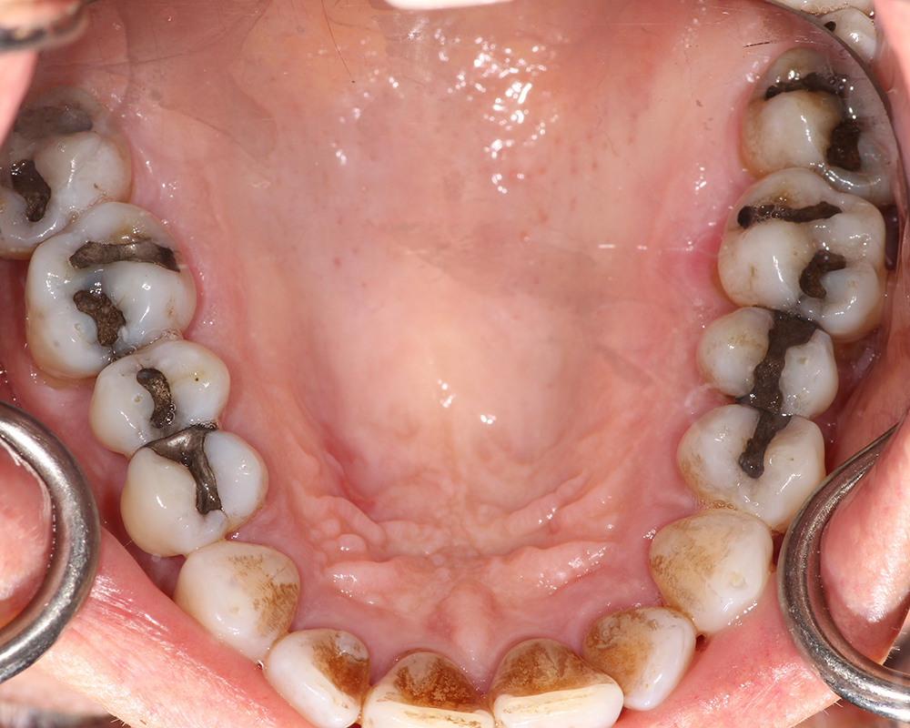 Implants and Dentures Treatment, Encino, CA -  Case 02- Image 02