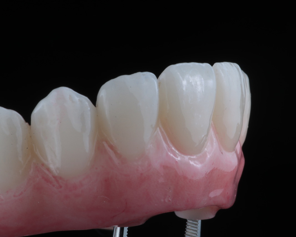 Implants and Dentures Treatment, Encino, CA -  Case 02- Image 04