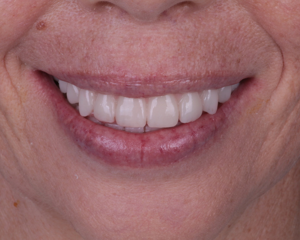 Implants and Dentures Treatment, Encino, CA -  Case 02- Image 05