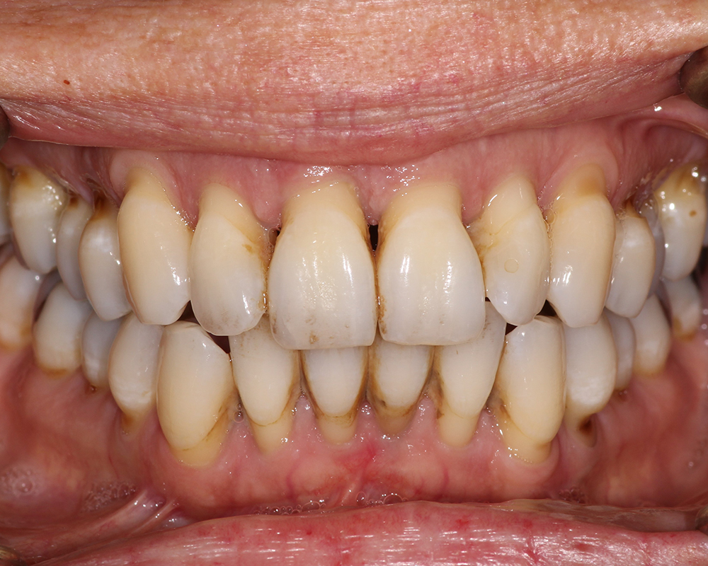 Implants and Dentures Treatment, Encino, CA -  Case 02- Image 06
