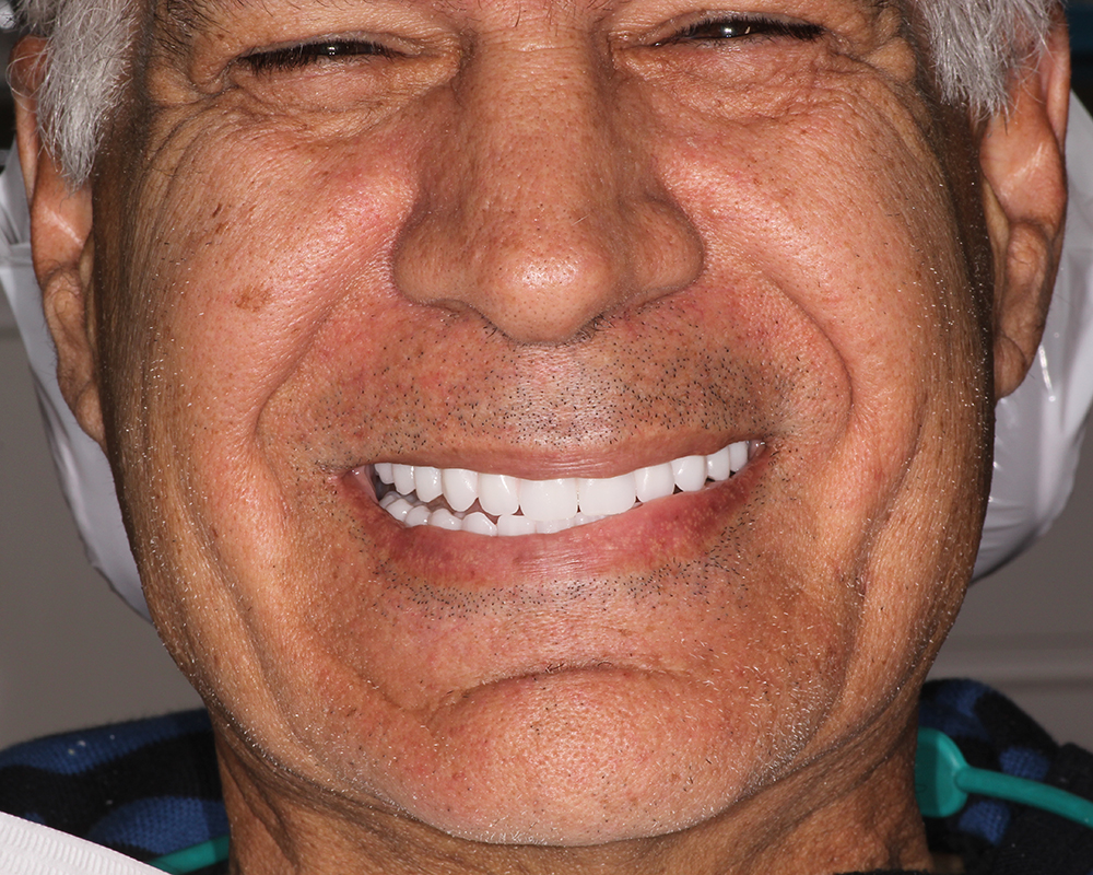 Implants and Dentures Treatment, Encino, CA -  Case 03- Image 01