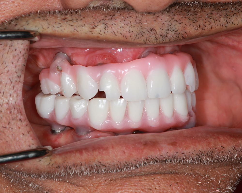 Implants and Dentures Treatment, Encino, CA -  Case 03- Image 02