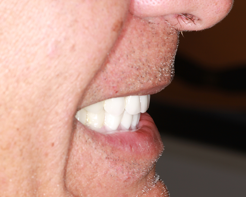 Implants and Dentures Treatment, Encino, CA -  Case 03- Image 03