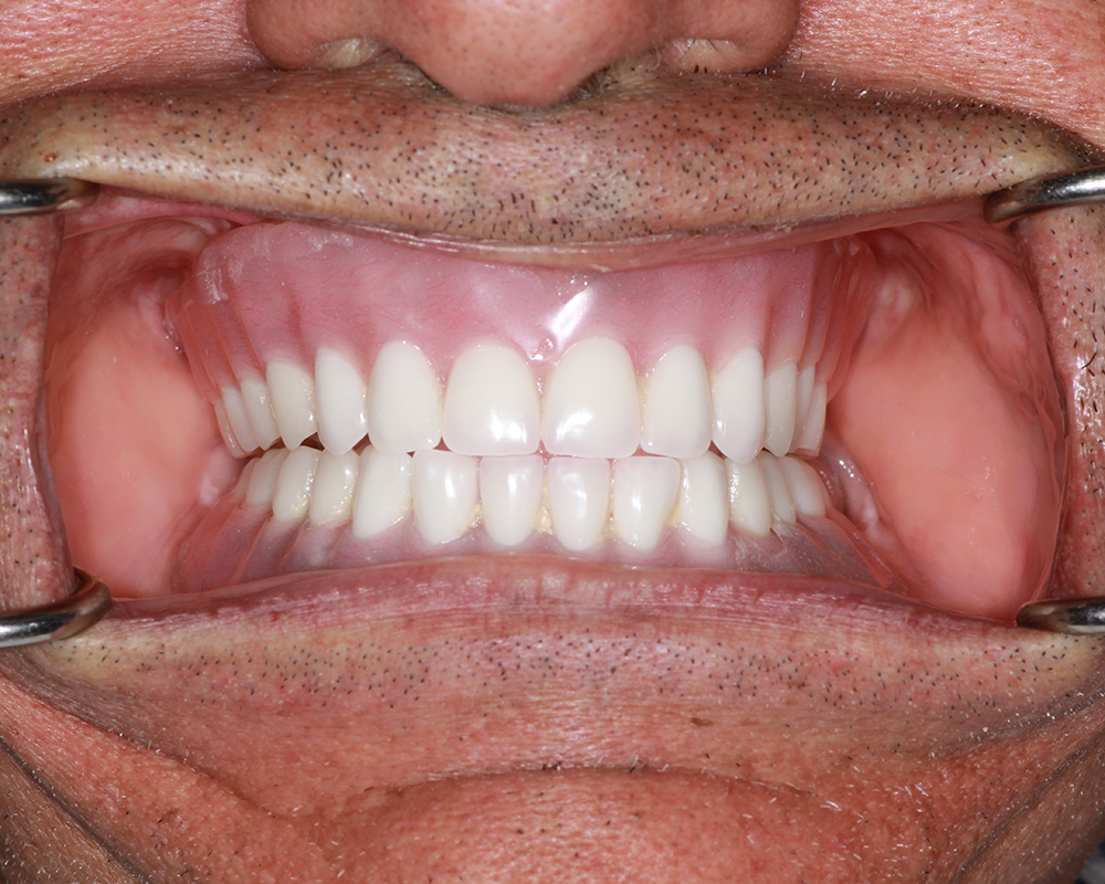 Implants and Dentures Treatment, Encino, CA -  Case 03- Image 04