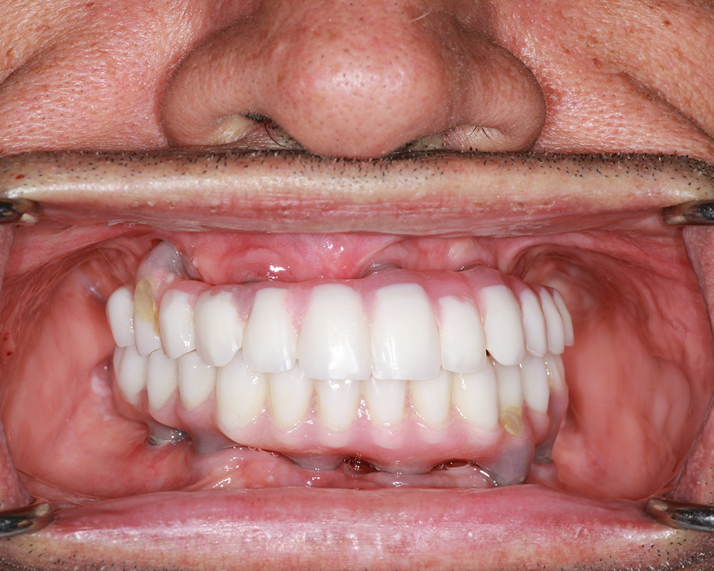 Implants and Dentures Treatment, Encino, CA -  Case 03- Image 05