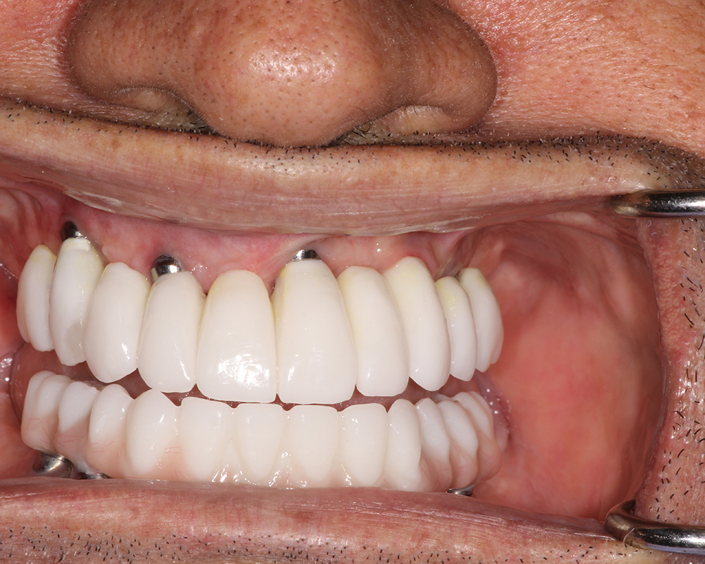 Implants and Dentures Treatment, Encino, CA -  Case 03- Image 06