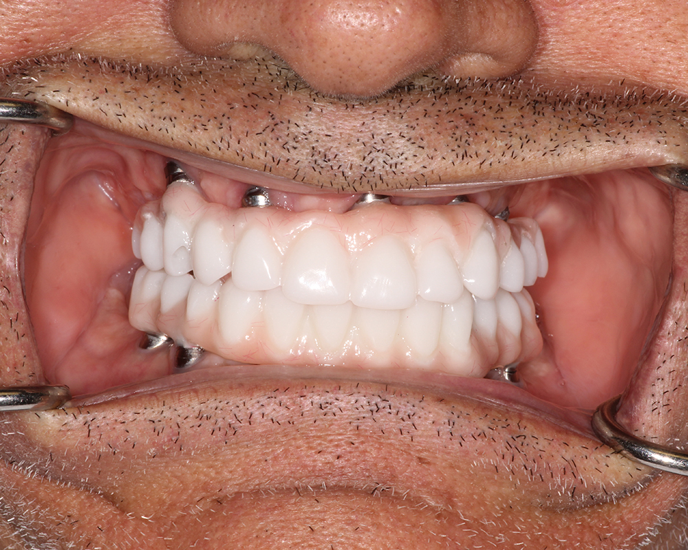 Implants and Dentures Treatment, Encino, CA -  Case 03- Image 07
