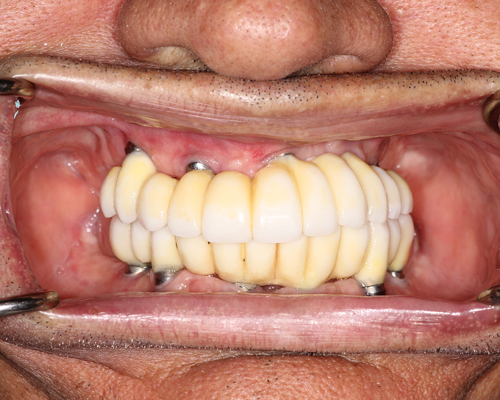 Implants and Dentures Treatment, Encino, CA -  Case 03- Image 08