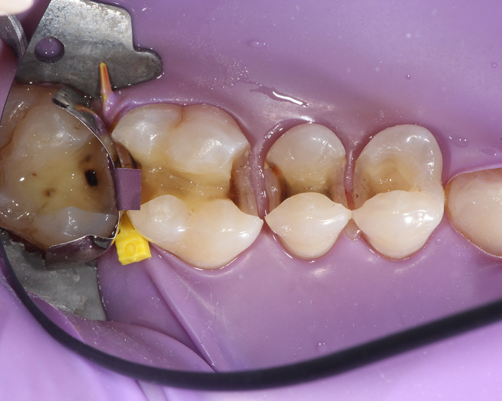 SAFE Mercury/Amalgam Filling Removal - LA - IAOMT SMART Method