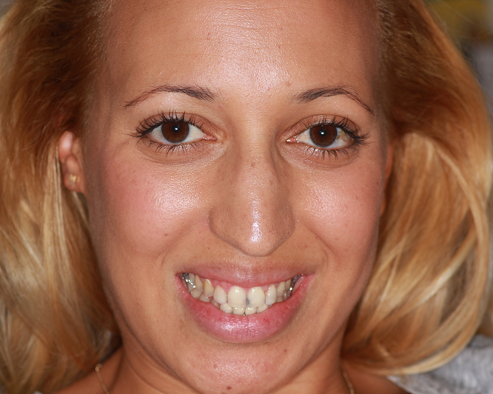 Ultra-Thin Veneers - LA - Beautiful and Functional Teeth for