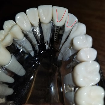 Dental Mold Modal