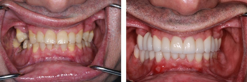 Full-Mouth Reconstruction Before Case 11