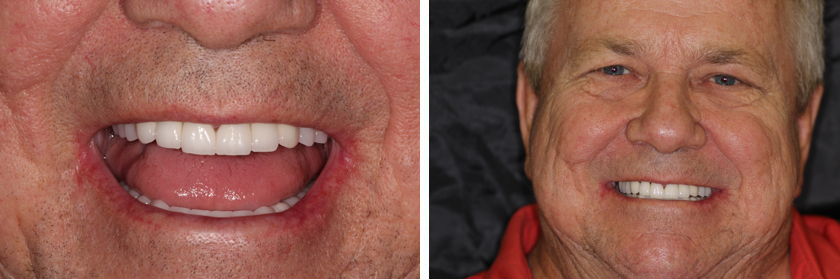 Full-Mouth Reconstruction After Case 02