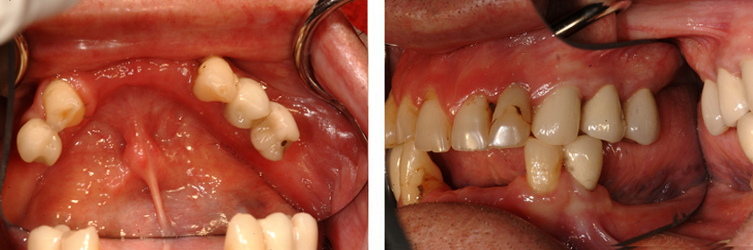 Full-Mouth Reconstruction Before Case 03
