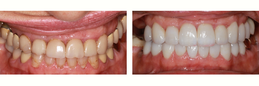 Full-Mouth Reconstruction Before Case 01