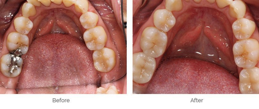 Mercury Removal Before and After Case 2