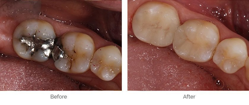 Mercury Removal Before and After
