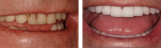 Dentist Encino - Before After 01