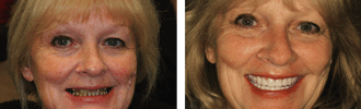 Before and After Photos Encino - Gerri 06