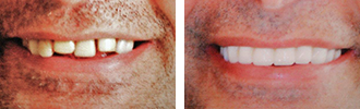 Before and After Photos Encino - Smile Makeover 02
