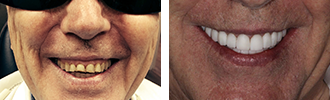 Before and After Photos Encino - Smile Makeover 03