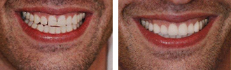 Before and After Photos Encino - Smile Makeover 04