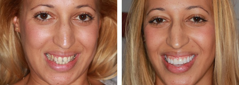 Ultra-thin Veneers before and after Case 2