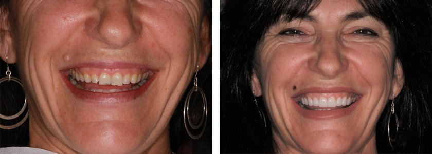 Ultra-thin Veneers before and after Case 3
