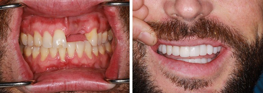 Ultra-thin Veneers before and after Case 4