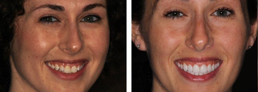 Ultra-thin Veneers before and after Case 5