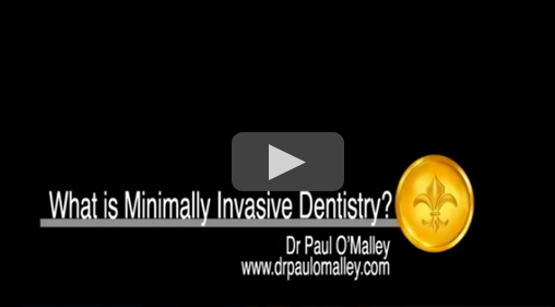 What is Minimally Invasive Dentistry